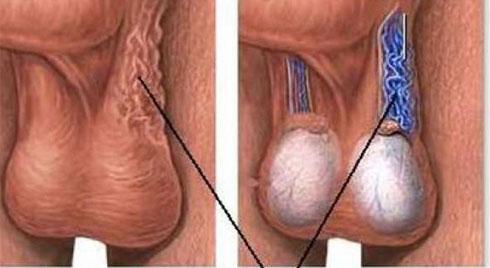 Giãn tĩnh mạch tinh hoàn, căn bệnh  khiến các quý ông không có tinh trùng