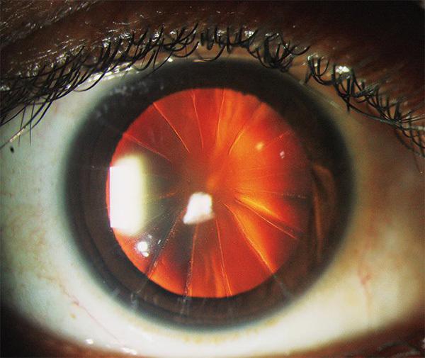Kỳ lạ người phụ nữ có đôi mắt như chiếc bánh pizza cắt lát-1