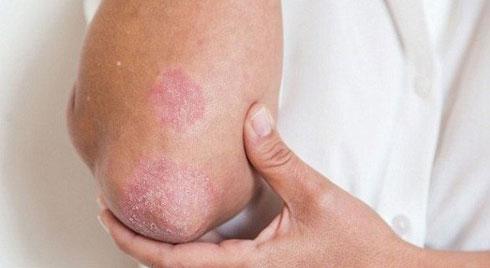 Bệnh vảy nến toàn thân : Nguyên nhân và biến chứng nguy hiểm