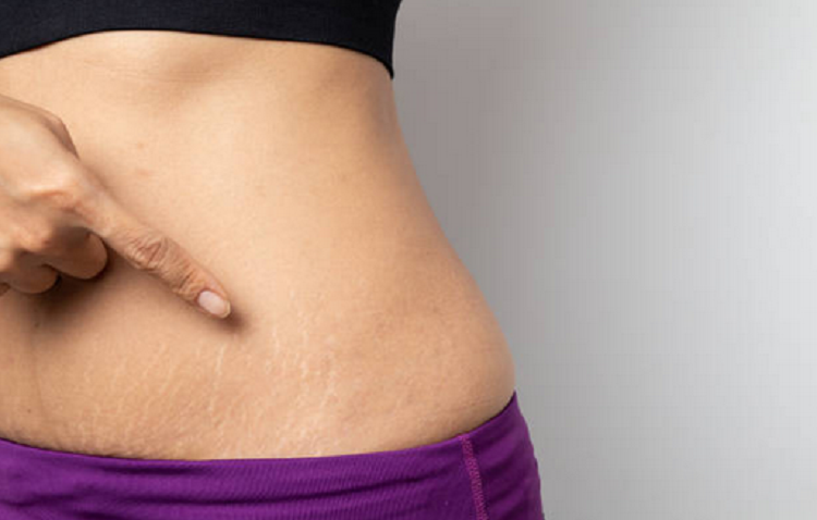 Trị rạn da bằng dầu ô liu giúp bạn lấy lại làn da căng bóng-1
