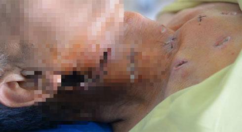 Tưởng bị quai bị nên tự đắp thuốc lá, bệnh nhân bị hoại tử vùng cổ và ngực