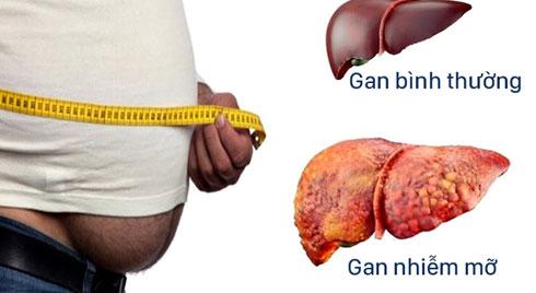 Hậu quả khôn lường của bệnh gan nhiễm mỡ
