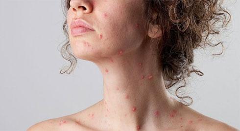 Thời tiết giao mùa rất dễ mắc bệnh thủy đậu và đây là một số điều cần lưu ý khi gặp phải căn bệnh này