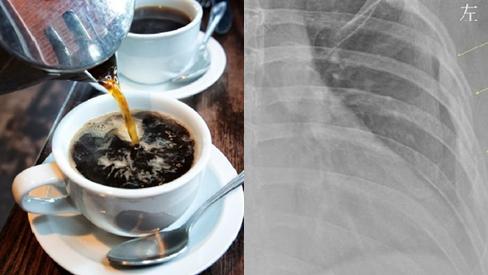 Uống 10 tách cà phê mỗi ngày, người phụ nữ 30 tuổi khiến ai nhìn kết quả X-quang cũng sốc nặng