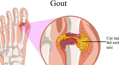 Dấu hiệu nhận biết của bệnh gút và cách giảm đau hiệu quả
