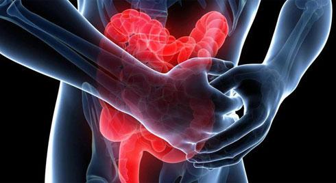 5 dấu hiệu của bệnh viêm trực tràng: Không điều trị sẽ có nguy cơ tiến triển thành ung thư
