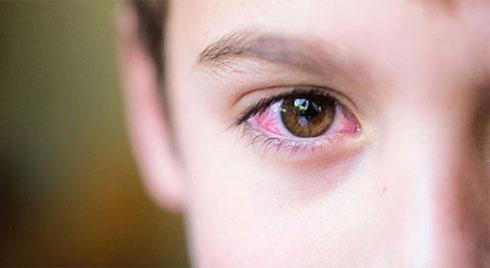 Phân biệt  tình trạng dị ứng theo mùa với bệnh đau mắt đỏ