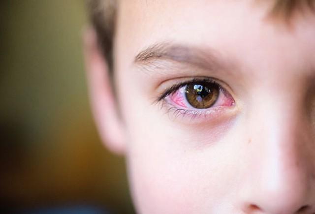 Phân biệt  tình trạng dị ứng theo mùa với bệnh đau mắt đỏ-3