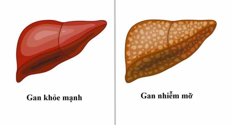 Gan nhiễm mỡ: Triệu chứng, chẩn đoán và điều trị-1
