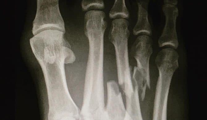 Gãy xương bàn chân-1