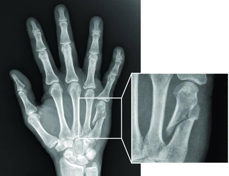 Gãy xương bàn tay-1