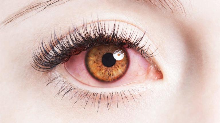 Tác hại của kính áp tròng: Bạn chớ nên xem thường-2