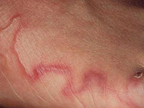 Những sai lầm về việc tẩy giun sán hầu như ai cũng mắc phải