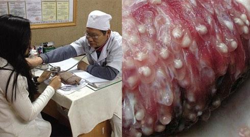 """Bộ Y tế: """"Chưa phải điều trị sán lợn dù kết quả xét nghiệm dương tính"""""""