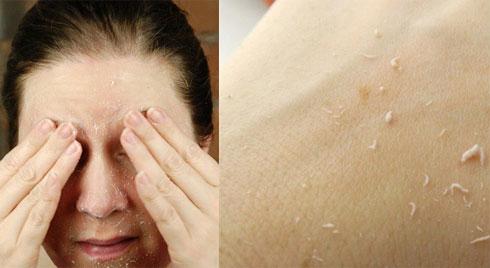Chính bạn đang tự tay phá hủy làn da của mình nếu mắc phải các thói quen sau
