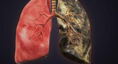 """Bệnh về phổi ngày càng phổ biến: Hãy ăn những thực phẩm này để ngăn ngừa bệnh """"tấn công"""""""