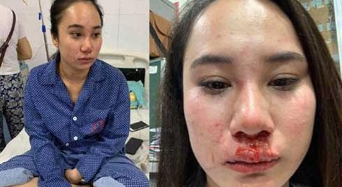 Cô gái bị đánh ghen ở Bà Triệu công khai vết thương, khẳng định oan ức và yêu cầu đưa bằng chứng 'con giáp 13'