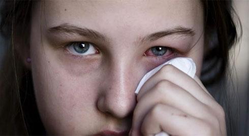 Đau mắt đỏ và những căn bệnh về mắt lây lan rất nhanh trong mùa nóng mà ai cũng cần cảnh giác