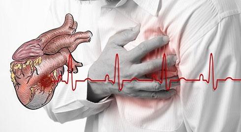 Thời tiết chuyển mùa, cẩn trọng với bệnh nhồi máu cơ tim ở người già