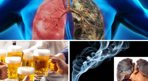 Bệnh ung thư phổi mà nghệ sĩ Lê Bình mắc phải nguy hiểm và cách phòng tránh thế nào?