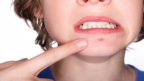 Bác sĩ da liễu 'mách nước' 5 cách trị sẹo mụn tại nhà an toàn mà ít tốn kém
