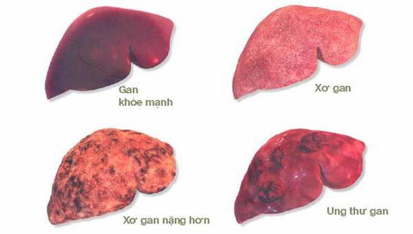 Muốn tránh ung thư gan, đây là 4 điều bạn cần làm ngay lập tức-1