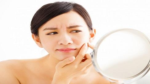Muốn da không bị nổi mụn, bạn phải thực hiện đúng 5 nguyên tắc ăn uống này