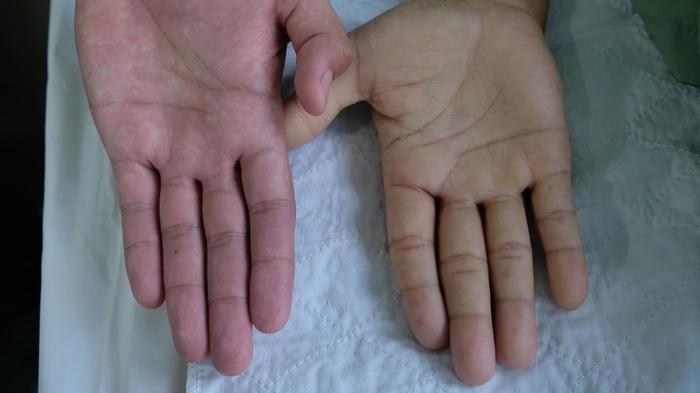 Dấu hiệu giúp bạn nhận biết sớm tình trạng thiếu máu , nếu có đi khám còn kịp-1