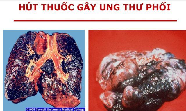 Nghệ sĩ Lê Bình qua đời vì ung thư phổi: Bác sĩ chỉ ra thủ phạm chính gây bệnh này-2