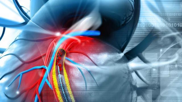 Cựu thủ môn của Real Madrid đột ngột bị nhồi máu cơ tim, hãy lưu ý 8 dấu hiệu của bệnh-3