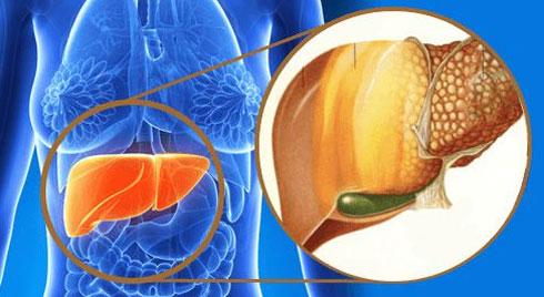 5 dấu hiệu bạn bị gan nhiễm mỡ cực kỳ nguy hiểm, cần đến gặp bác sĩ ngay kẻo mất mạng bất ngờ