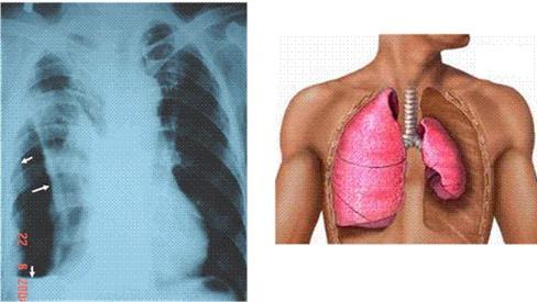 Bài thuốc hỗ trợ chữa lao phổi