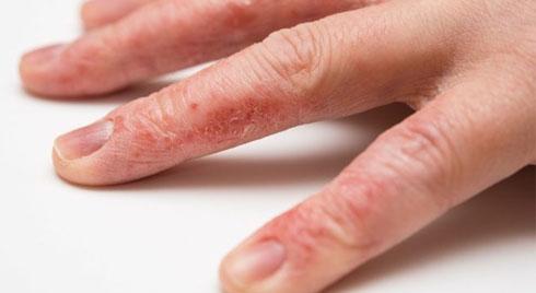 6 bệnh da liễu và những nguy cơ đáng sợ