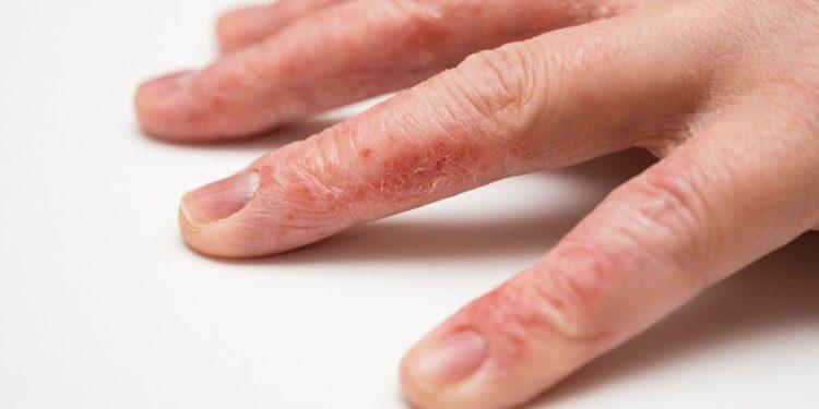 6 bệnh da liễu và những nguy cơ đáng sợ-1