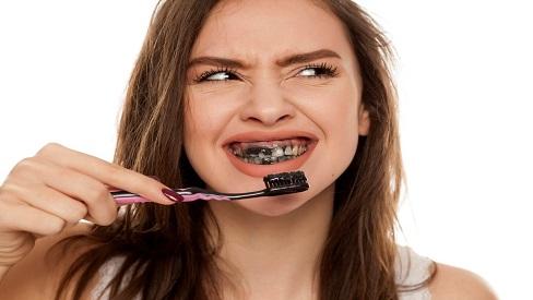 Kem đánh răng từ than hoạt tính không có tác dụng làm trắng răng?
