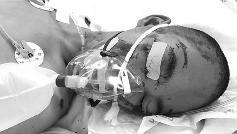 Xót cảnh bé trai bại não, mẹ bỏ lại chùa bị tai nạn giao thông, tính mạng nguy kịch