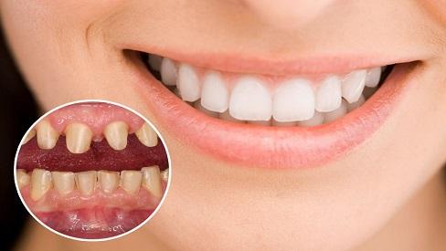 Bọc răng sứ và những điều cần biết để có bộ răng trắng đẹp