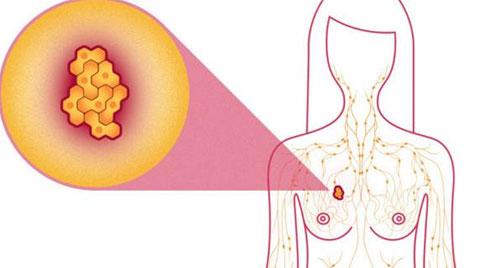 Ung thư vú: Dấu hiệu, nguyên nhân và các giai đoạn phát triển