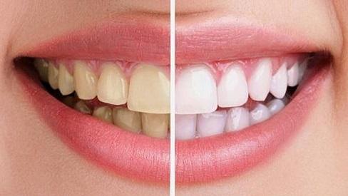 Bật mí cách đơn giản ngay tại nhà giúp răng ố vàng trở nên sáng bóng