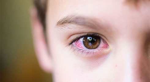 Mùa hè dịch đau mắt đỏ bùng phát: Dấu hiệu nhận biết và cách phòng tránh bệnh