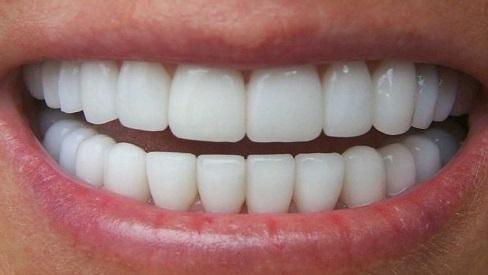 Làm đẹp với răng sứ Veneer cần chú ý điều gì?