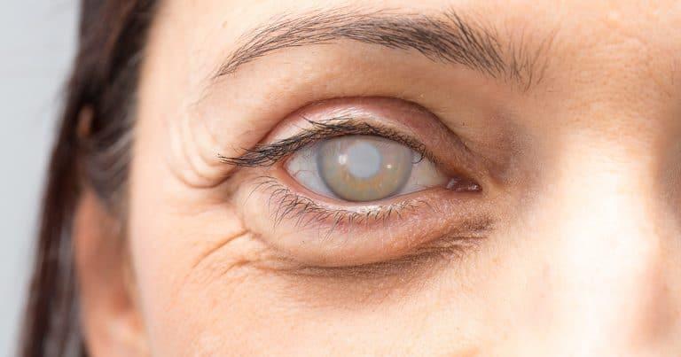 Các biến chứng sau mổ đục thủy tinh thể ở người cao tuổi-2