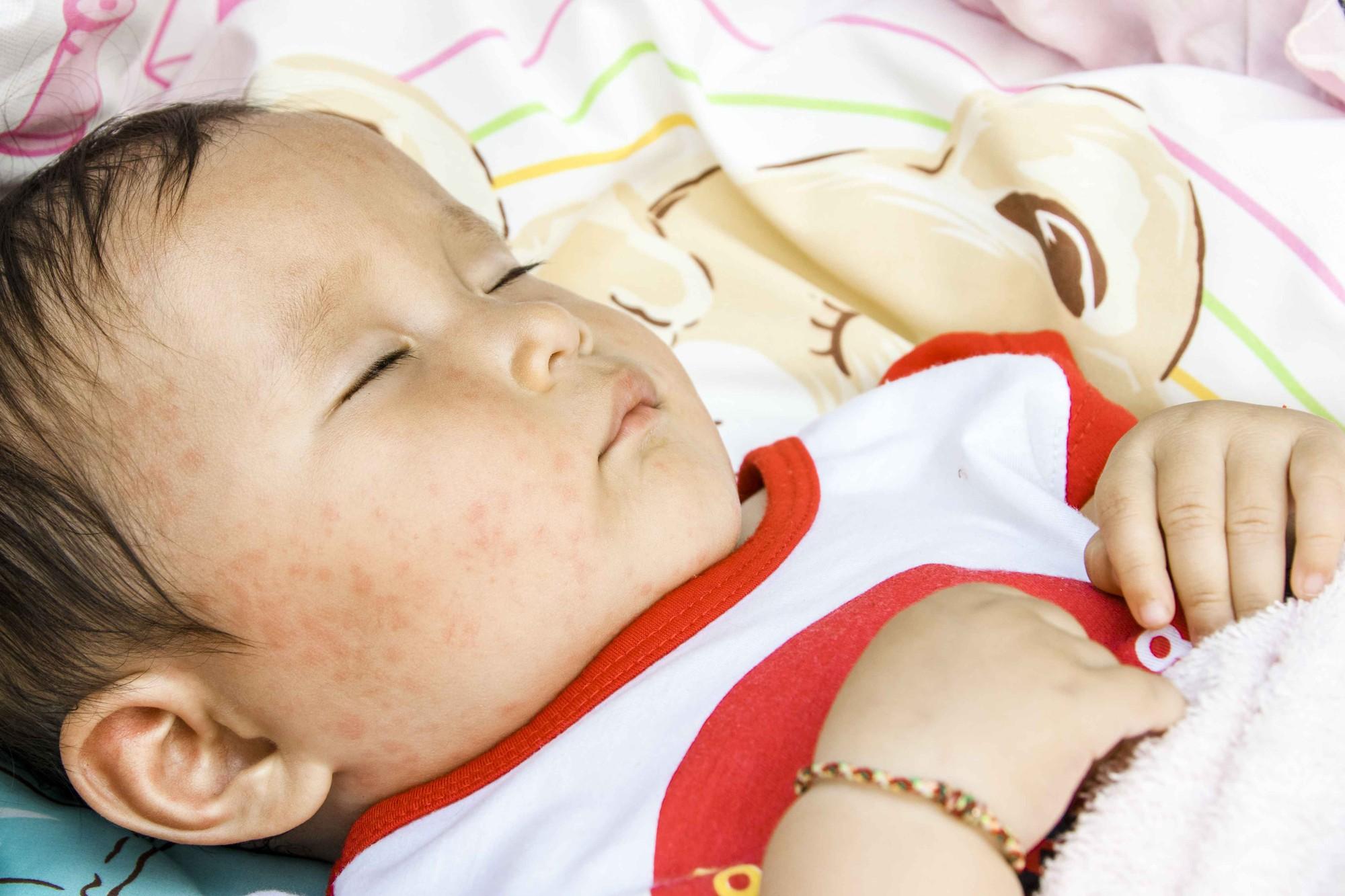 Bé 2 tuổi bị sùi mào gà, 4 tháng tuổi bị bệnh lậu... nguyên nhân do chính thói quen của người lớn vẫn chăm sóc bé hàng ngày-2