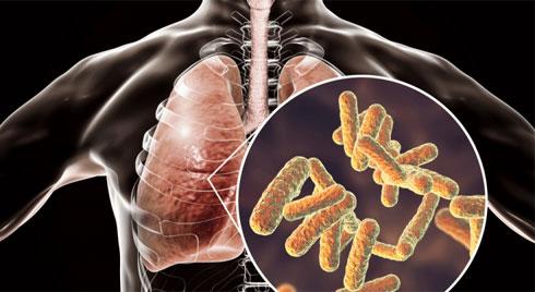 Bạn có đang mắc phải triệu chứng viêm phổi không?