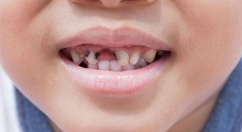 Bé đánh răng hàng ngày mà vẫn bị sâu răng: Nguyên nhân nào?