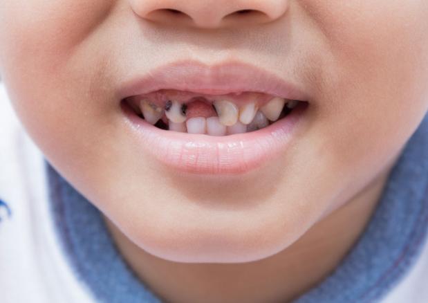 Bé đánh răng hàng ngày mà vẫn bị sâu răng: Nguyên nhân nào?-1