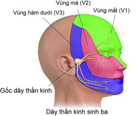 Nhận biết đau dây thần kinh số V-1