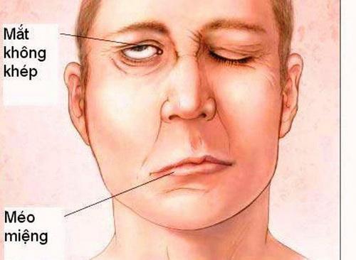 Nhận biết đau dây thần kinh số V-2