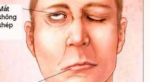 Nhận biết đau dây thần kinh số V