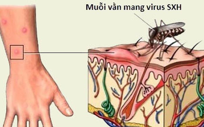 Biến chứng nguy hiểm của bệnh sốt xuất huyết không nên chủ quan-1